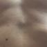 やせたことで肋骨(ろっ骨)の間、みぞおち近くに「しこり」があるのに気づいたけど、これは剣状突起?